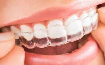 Invisalign e Ortodonzia nell'adulto